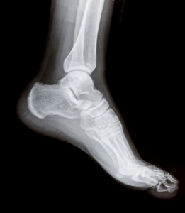 X-ray image of the foot