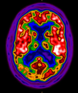Picture of a brain using PET/CT